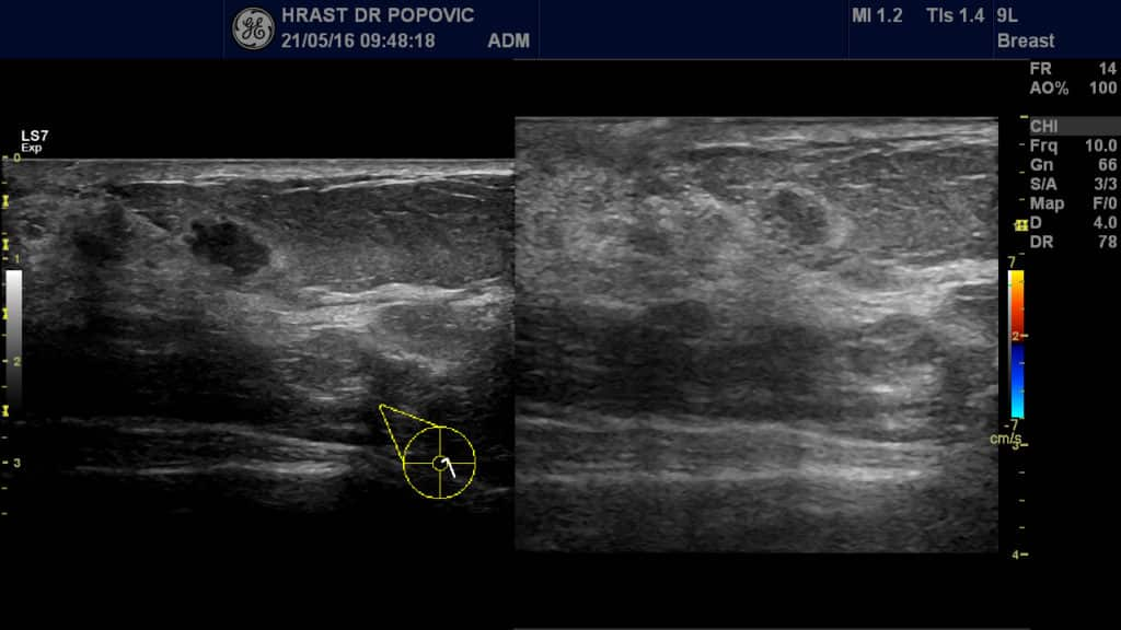 ultrazvuk štitaste zlezde